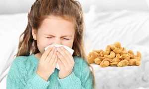 Аллергия на кешью